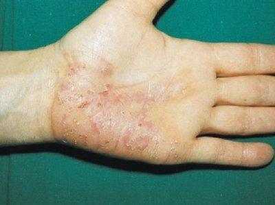 vozmozhno-li-zarazitsya-psoriazom-ot